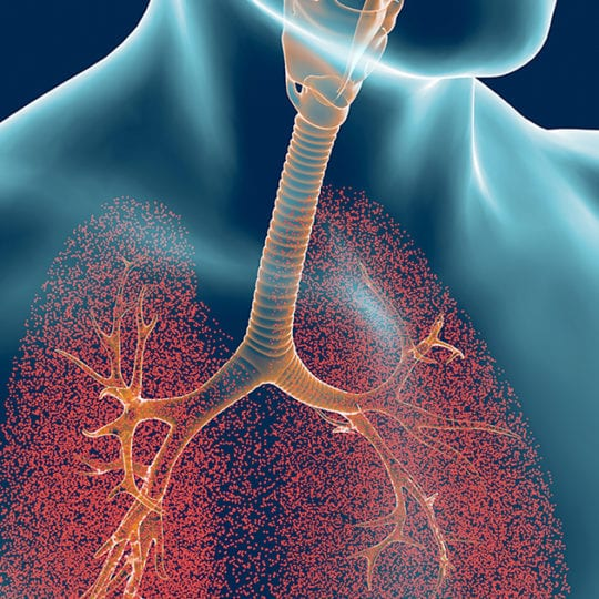 ARDS Lungs